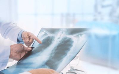 Πνεύμονες και Διατροφή: Ποιος είναι ο ρόλος των αντιοξειδωτικών στην πνευμονική λειτουργία;